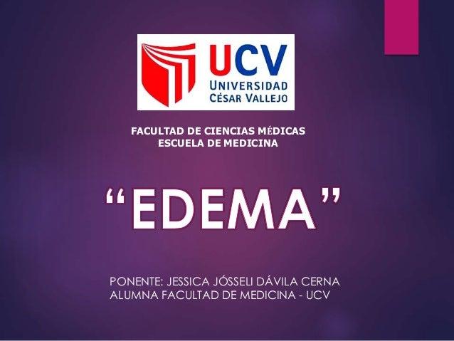 FACULTAD DE CIENCIAS MÉDICAS  ESCUELA DE MEDICINA  PONENTE: JESSICA JÓSSELI DÁVILA CERNA  ALUMNA FACULTAD DE MEDICINA - UC...