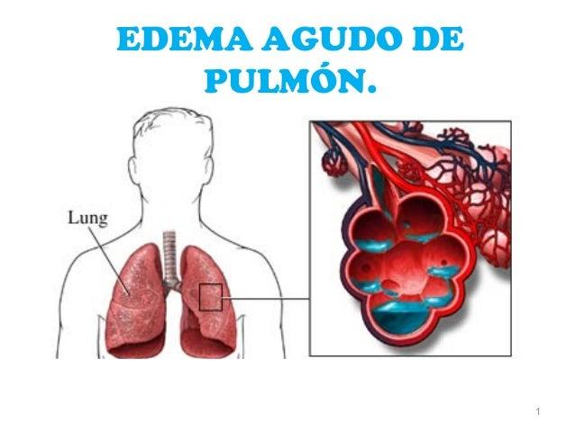 EDEMA AGUDO DE   PULMÓN.                 1