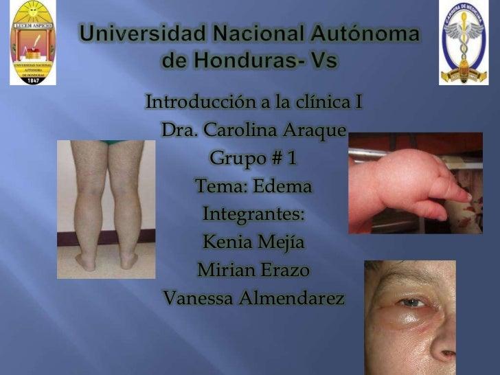 Introducción a la clínica I  Dra. Carolina Araque        Grupo # 1      Tema: Edema       Integrantes:       Kenia Mejía  ...