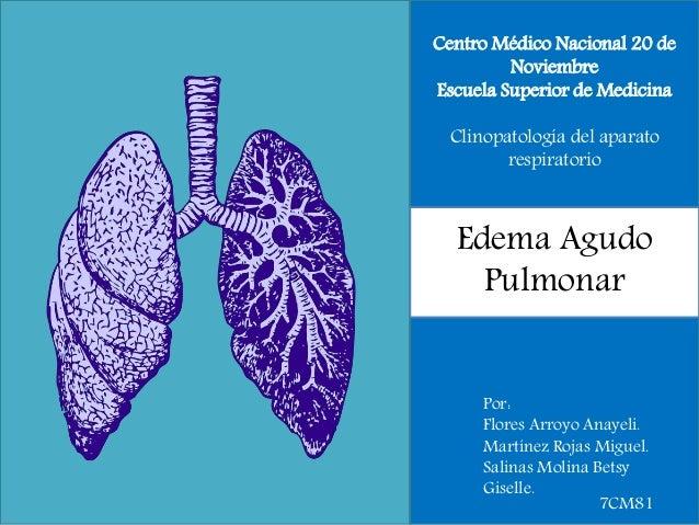 Centro Médico Nacional 20 de Noviembre Escuela Superior de Medicina Clinopatología del aparato respiratorio Edema Agudo Pu...
