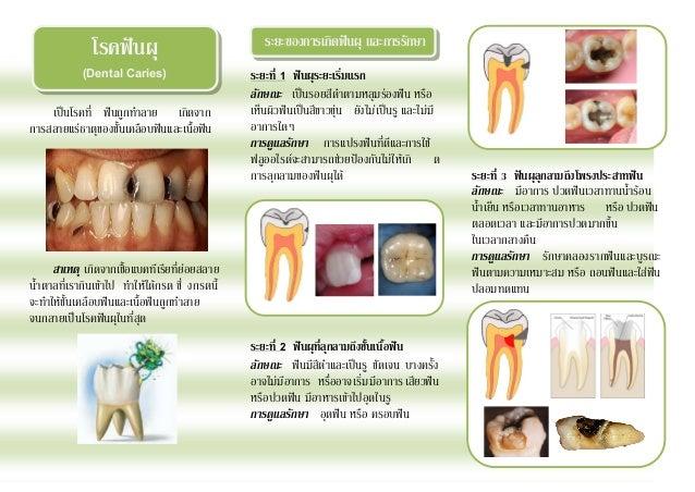 โรคฟันผุ                             ระยะของการเกิดฟันผุ และการรักษา             (Dental Caries)                     ระยะท...