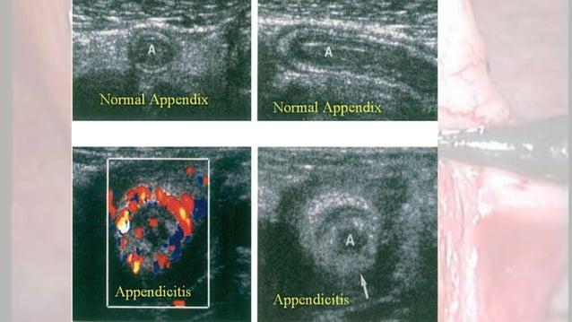 Chẩn đoán phân biệt • Pelvic inflammatory disease (PID) or tubo-ovarian abscess • Endometriosis • Ovarian cyst or torsion ...