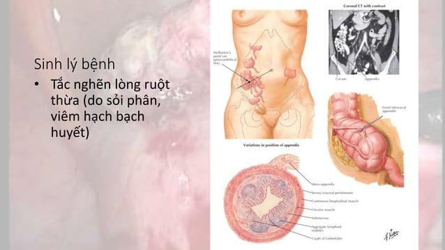 Chẩn đoán lâm sàng • Đau chuyển • Buồn nôn, nôn ói • Sốt nhẹ • HC đáp ứng viêm toàn thân • MB (+) • Có dấu hiệu kích thích...