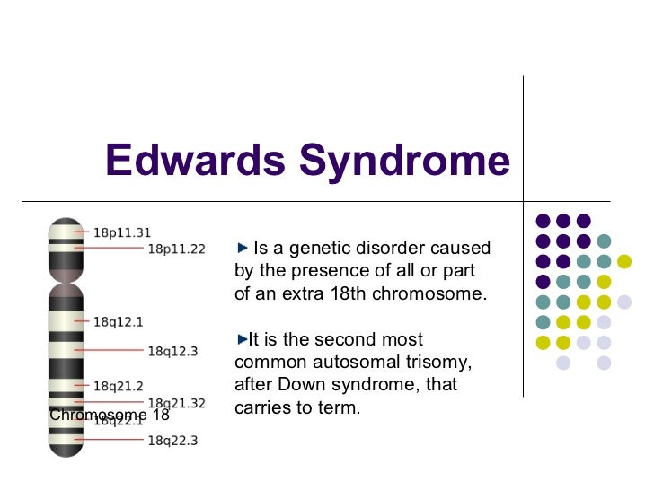Edwards Syndrome                   Is a genetic disorder caused                by the presence of all or part             ...
