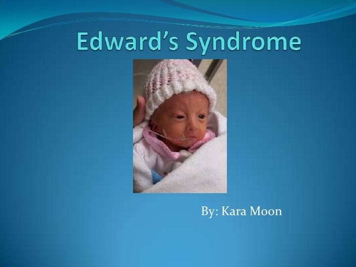 Edward'S Syndrome1