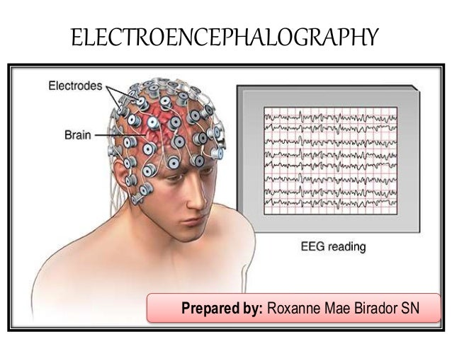 Image result for electroencephalography