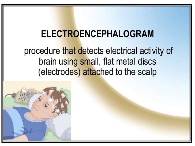 ELECTROENCEPHALOGRAM/ ELECTROENCEPHALOGRAPHY