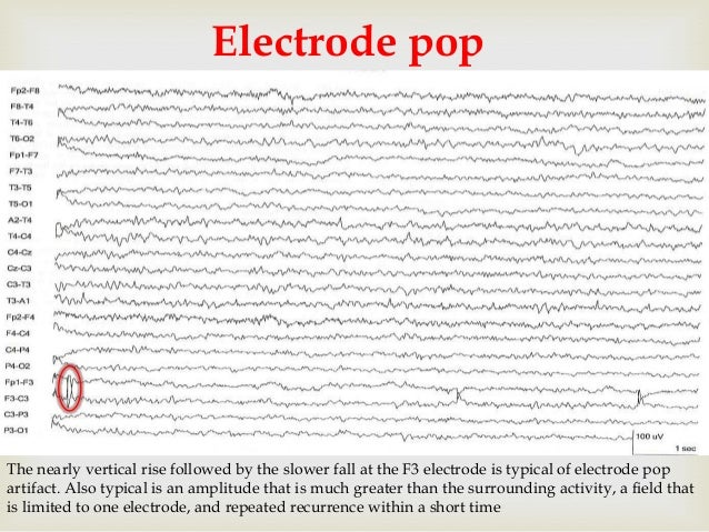 Electroencephalographic (EEG) Video Monitoring