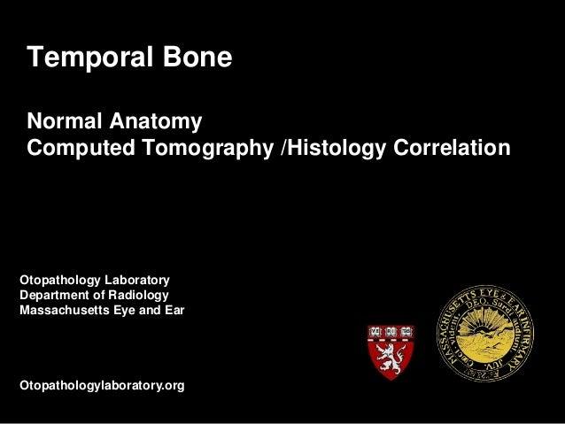 Temporal Bone Normal Anatomy Computed Tomography /Histology Correlation Otopathology Laboratory Department of Radiology Ma...