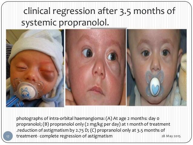 Severe facial hemangeomas