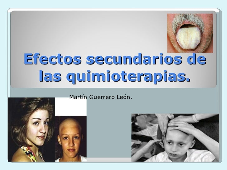 Efectos secundarios de las quimioterapias. Martín Guerrero León.