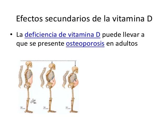 Efectos secundarios de la vitamina D • La deficiencia de vitamina D puede llevar a que se presente osteoporosis en adultos