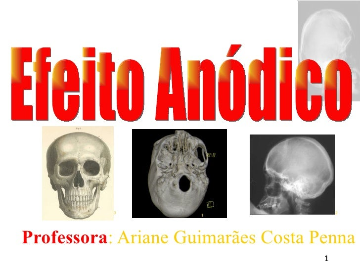 <ul><ul><li>Professora : Ariane Guimarães Costa Penna </li></ul></ul>Efeito Anódico 1 3 2