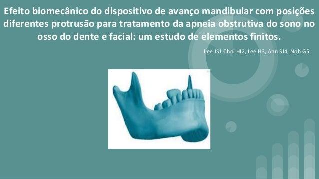 Efeito biomec�nico do dispositivo de avan�o mandibular com posi��es diferentes protrus�o para tratamento da apneia obstrut...