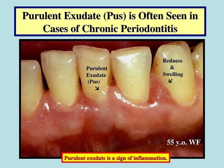 Effect of Periodontal Infections on Fetal Development ...
