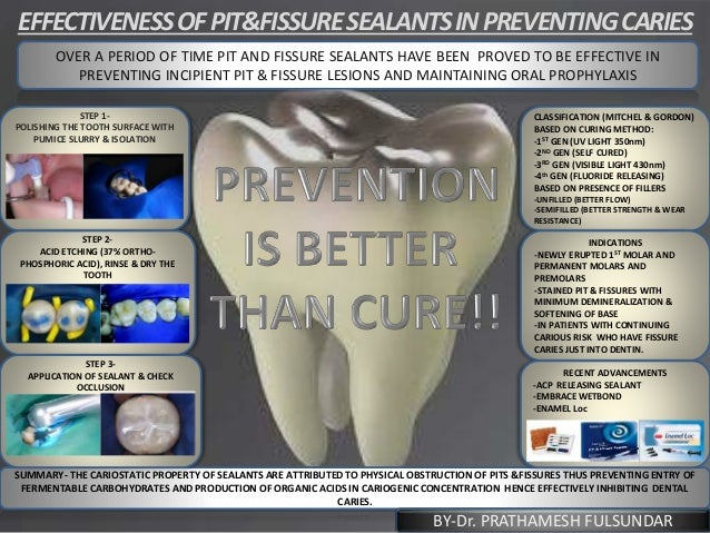 EFFECTIVENESSOFPIT&FISSURESEALANTSINPREVENTINGCARIES BBBBOVER A PERIOD OF TIME PIT AND FISSURE SEALANTS HAVE BEEN PROVED T...