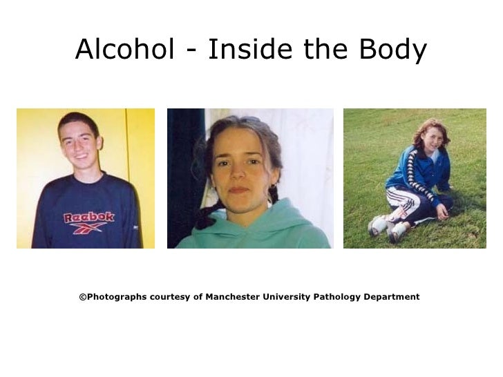 Alcohol - Inside the Body © Photographs courtesy of Manchester University Pathology Department
