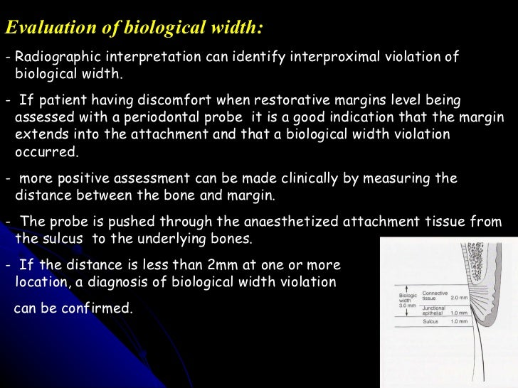 10 evaluation of biological width
