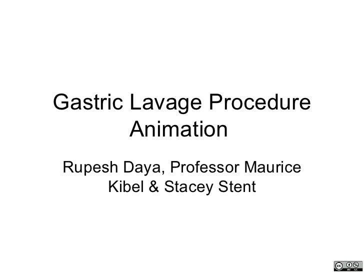 Gastric Lavage Procedure        AnimationRupesh Daya, Professor Maurice     Kibel & Stacey Stent