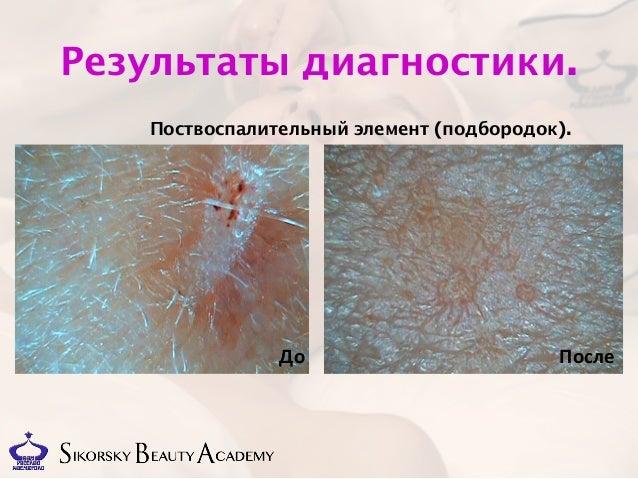 Дипломная работа Димитриевич косметика egia До После 11