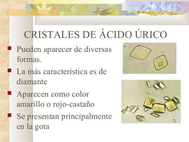 analisis acido urico farmacia acido urico leche de soja que no puedo comer si tengo acido urico alto