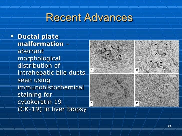 Recent Advances  <ul><li>Ductal plate malformation  – aberrant  morphological distribution of intrahepatic bile ducts seen...