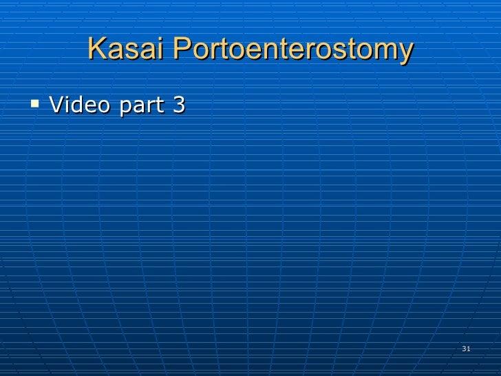 Kasai Portoenterostomy <ul><li>Video part 3 </li></ul>