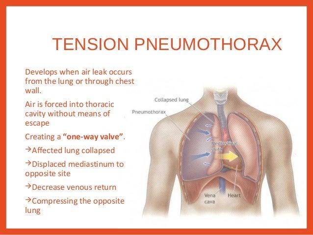 Resuscitation and thoracic trauma