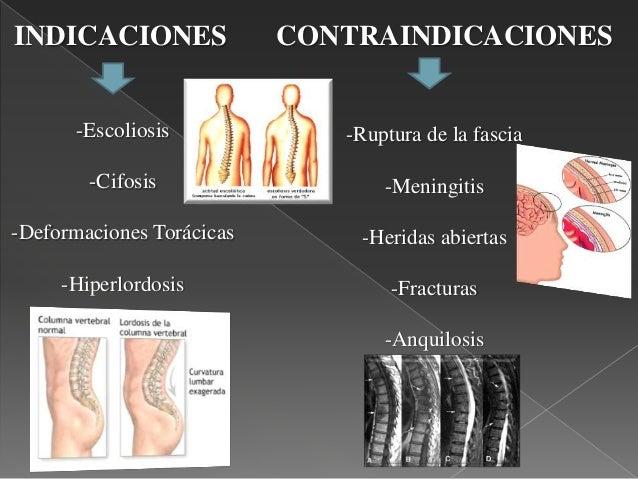 Ejercicios klapp para escoliosis