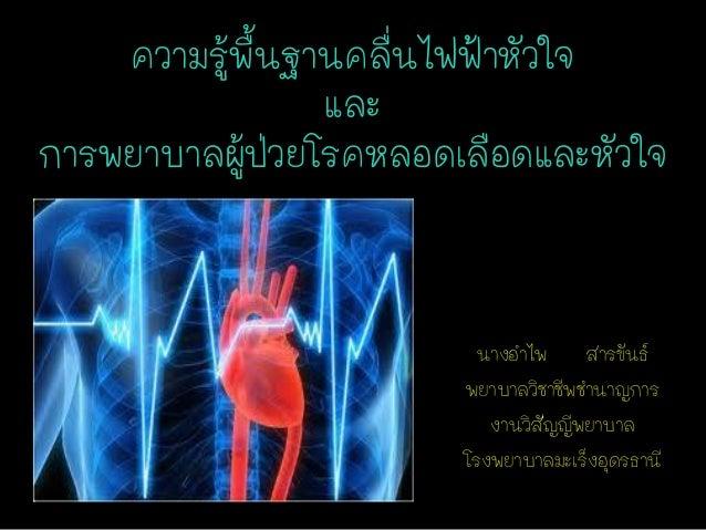 ความรูพนฐานคลืนไฟฟ้าหัวใจ ้ ้ื ่ และ การพยาบาลผูปวยโรคหลอดเลือดและหัวใจ ้่  นางอาไพ สารขันธ์ พยาบาลวิชาชีพชานาญการ งานวิสั...