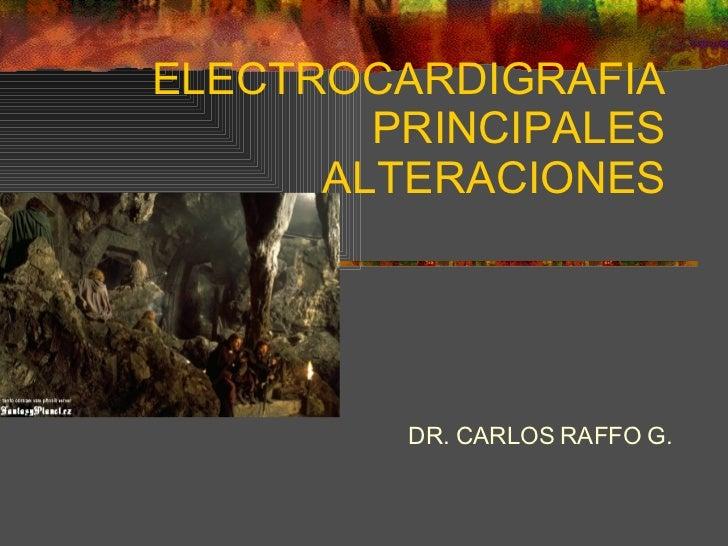 ELECTROCARDIGRAFIA PRINCIPALES ALTERACIONES DR. CARLOS RAFFO G.