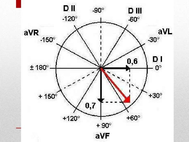 ekg cardio ekg vector leads ekg vector srca objasnjenje