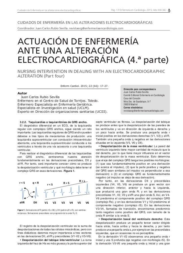 Pág. 17/ Enfermería en Cardiología. 2015; Año XXII (66)Cuidados de Enfermería en las alteraciones electrocardiográficas 3....