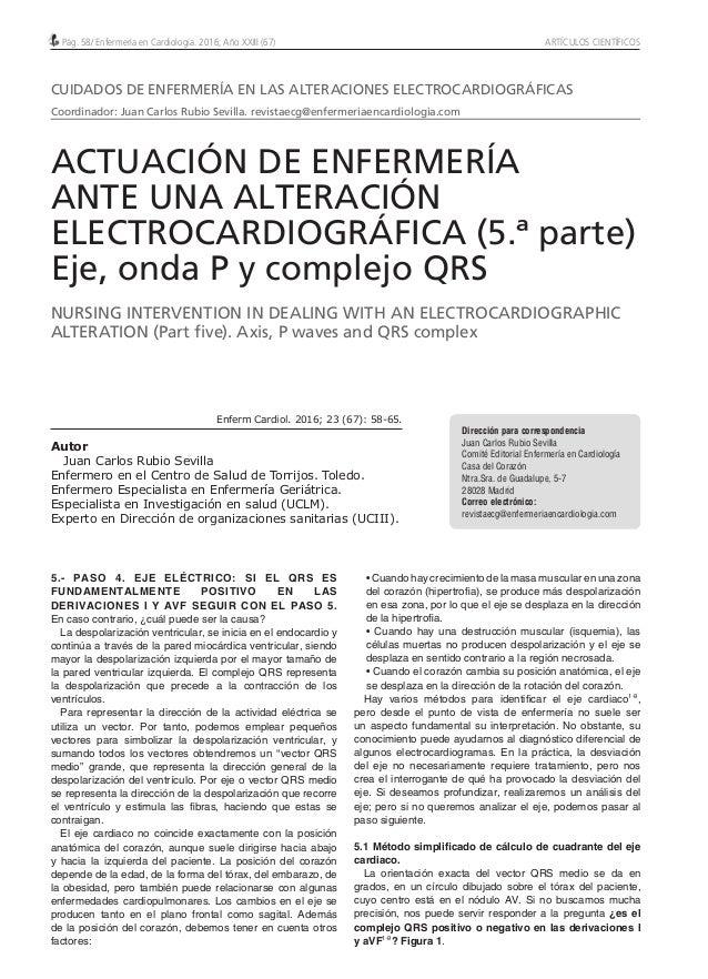 Pág. 58/ Enfermería en Cardiología. 2016; Año XXIII (67) ARTÍCULOS CIENTÍFICOS 5.- PASO 4. EJE ELÉCTRICO: SI EL QRS ES FUN...