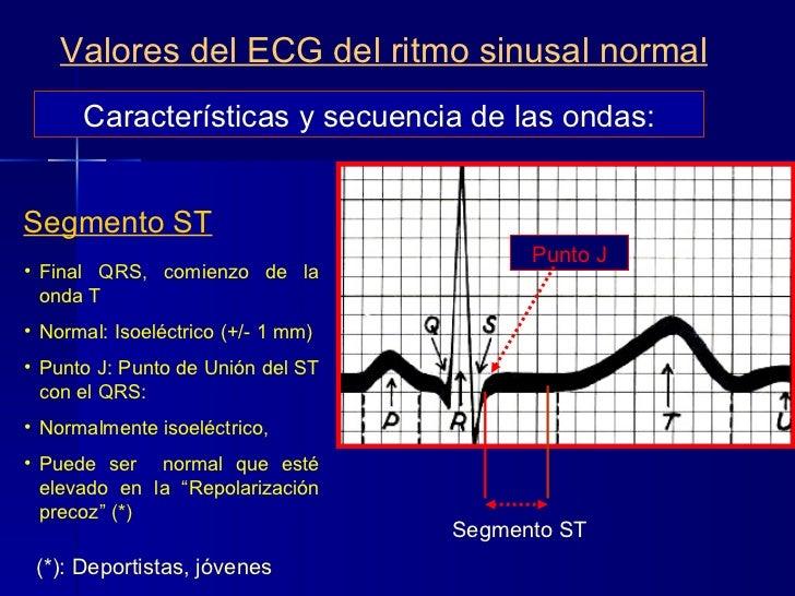 Características y secuencia de las ondas: Valores del ECG del ritmo sinusal normal Segmento ST <ul><ul><li>Final QRS, comi...