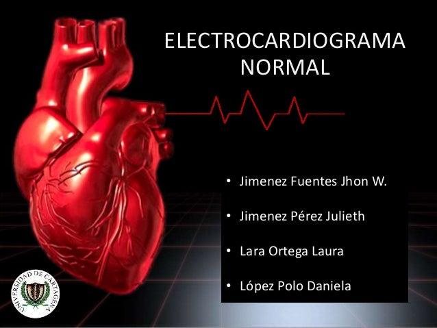 ELECTROCARDIOGRAMA NORMAL • Jimenez Fuentes Jhon W. • Jimenez Pérez Julieth • Lara Ortega Laura • López Polo Daniela