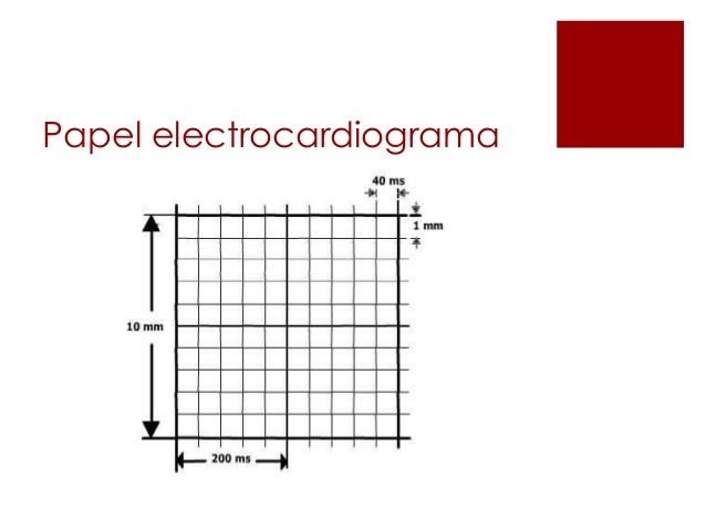 Ekg normal Slide 2