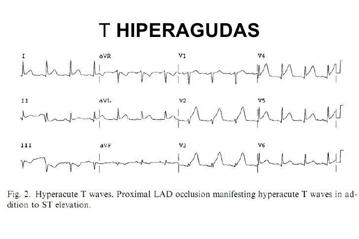 T HIPERAGUDAS + ST