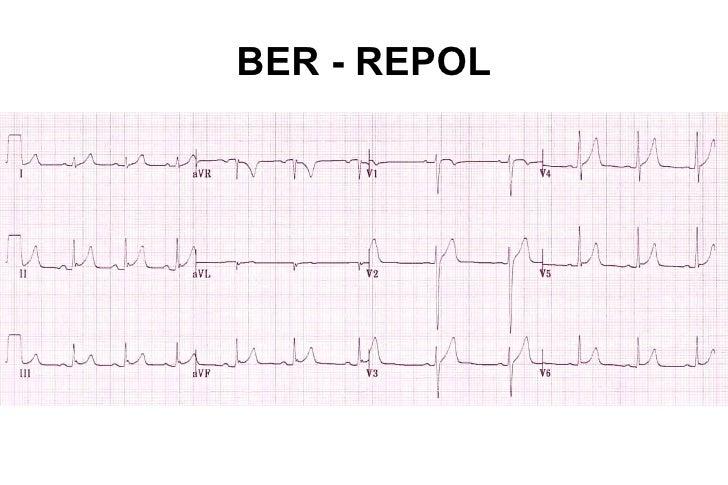 LESIÓN•   Se produce cuando hay disminución severa del flujo coronario•   Manifiesta por alteraciones del segmento ST•   R...
