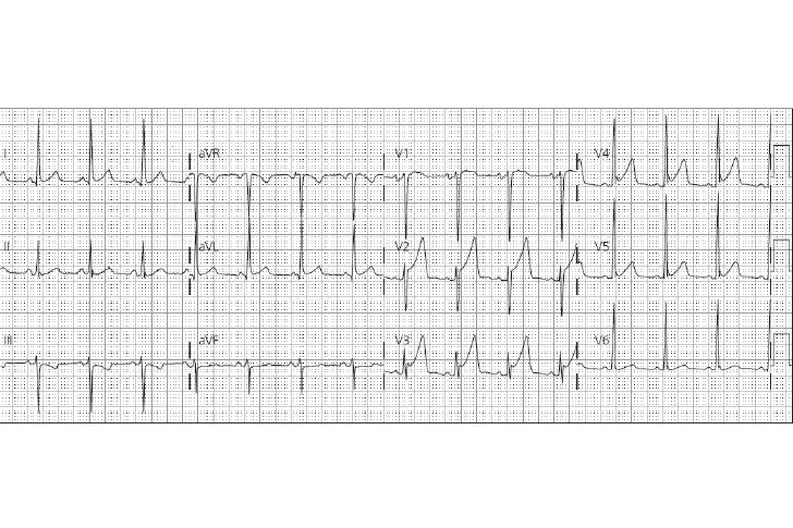 CORRIENTE DE LESIÓN DIASTÓLICA DCI– DCI: (TQ) Se aleja del miocardio lesionado– Incapacidad de mantener potencial transmem...