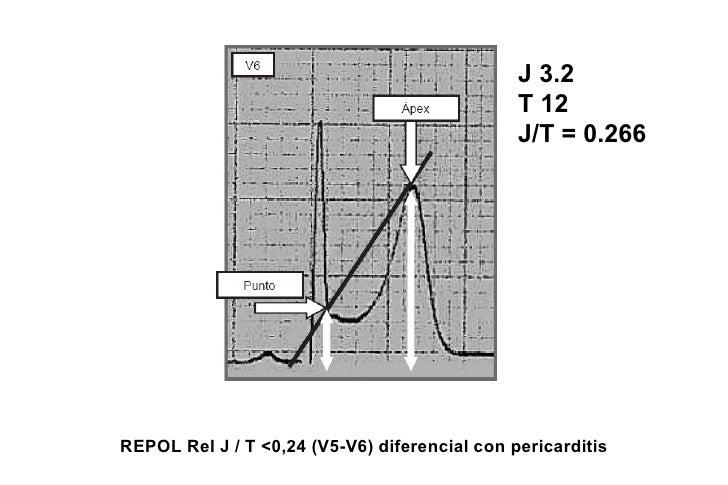 Potencial de reposo (fase 4) del ENDO se hace            menos negativo que EPI (gradiente)ENDO                        Ele...