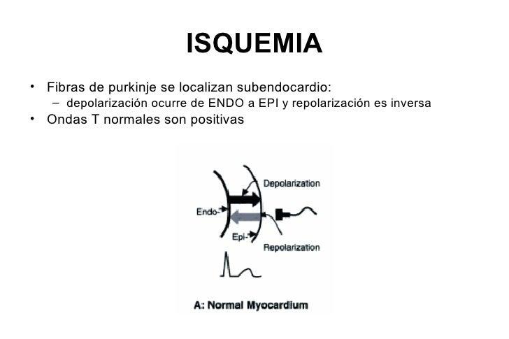 ISQUEMIA• Fibras de purkinje se localizan subendocardio:   – depolarización ocurre de ENDO a EPI y repolarización es inver...