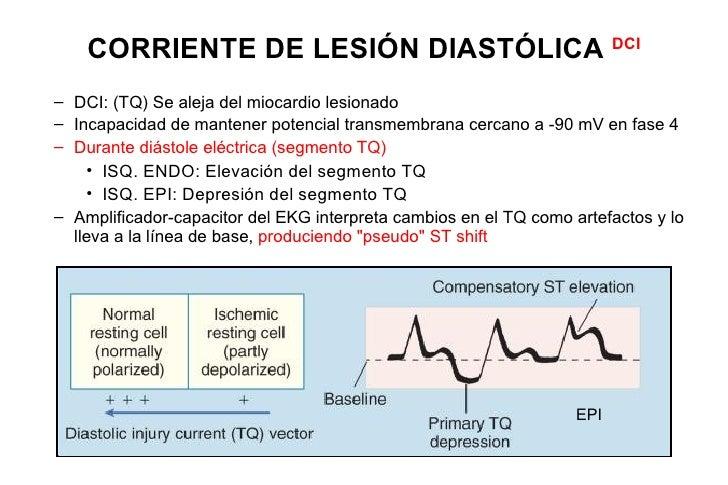 HORIZONTAL (FLAT)Sugerente de isquemiaDESCENDENTEMás específico para isquemia