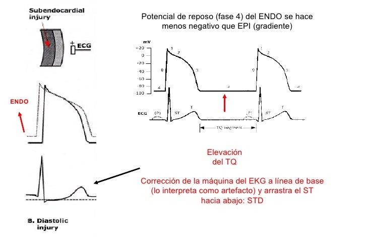 CONSIDERACIONES STD• Correlación con fuerza de la dx (amplitud R)   – STD 1 mm es más específico cuando R<10mm      • Pero...
