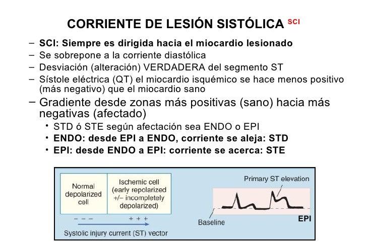 STD        cambio reciprocoSTE DIII>DII, cambios recíprocos en aVL + STD en V2 = INFERO-POSTERIOR AMI por                 ...