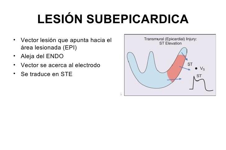 Onda Q• Vector normal de depolarización septal, onda Q fina y de amplitud  pequeña