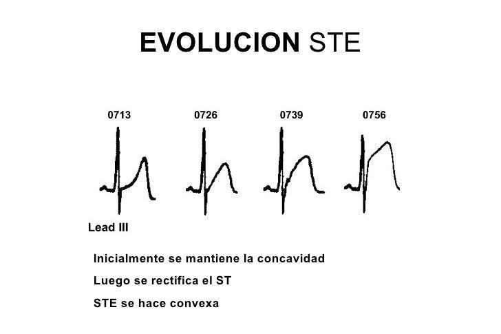 Onda Q patológicaEQUIVALENTES de ONDAS Q• 1. Mala progresión de R (R<3 mm en V3)• 2. Reversión de progresión de R• 3. R al...
