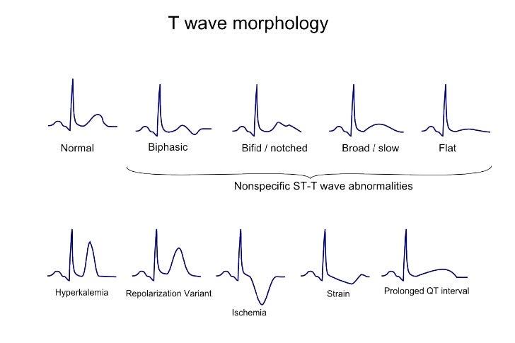 ONDAS                          T HIPERAGUDAS• Signo más precoz de isquemia   – Experimentalmente se forman a los 2' de ocl...