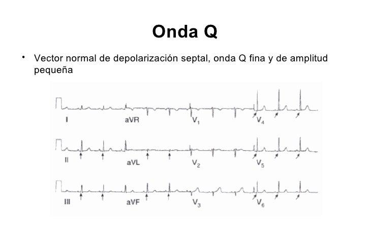 Componente lateral (Dg)                                                       D1• Dg se origina distal a Septal           ...