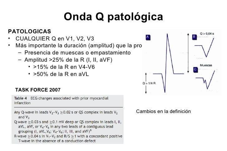 OCLUSION D1 STEMISTE de 1 mm DI y aVL, STD reciproco marcado en >III y aVF                   STD III > STE aVL